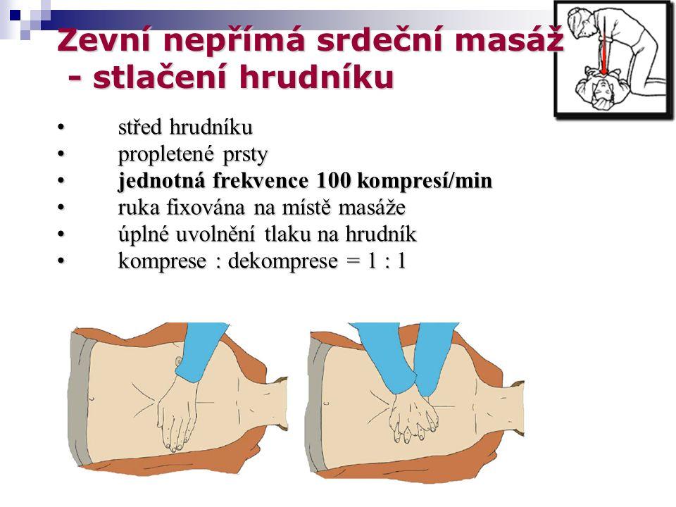Zevní nepřímá srdeční masáž - stlačení hrudníku - stlačení hrudníku střed hrudníkustřed hrudníku propletené prstypropletené prsty jednotná frekvence 100 kompresí/minjednotná frekvence 100 kompresí/min ruka fixována na místě masážeruka fixována na místě masáže úplné uvolnění tlaku na hrudníkúplné uvolnění tlaku na hrudník komprese : dekomprese = 1 : 1komprese : dekomprese = 1 : 1