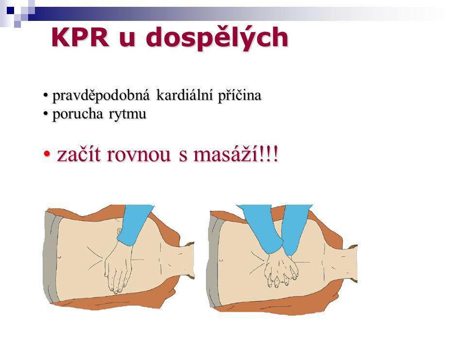 KPR u dospělých pravděpodobná kardiální příčina pravděpodobná kardiální příčina porucha rytmu porucha rytmu začít rovnou s masáží!!.