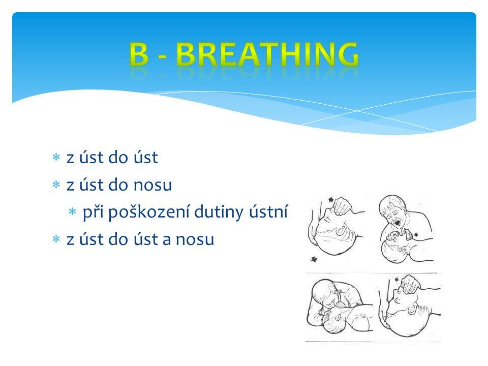  úkony vedoucí k obnovení a zajištění krevního oběhu  masáž srdce  stlačuje uprostřed hrudníku  100 stlačení za minutu
