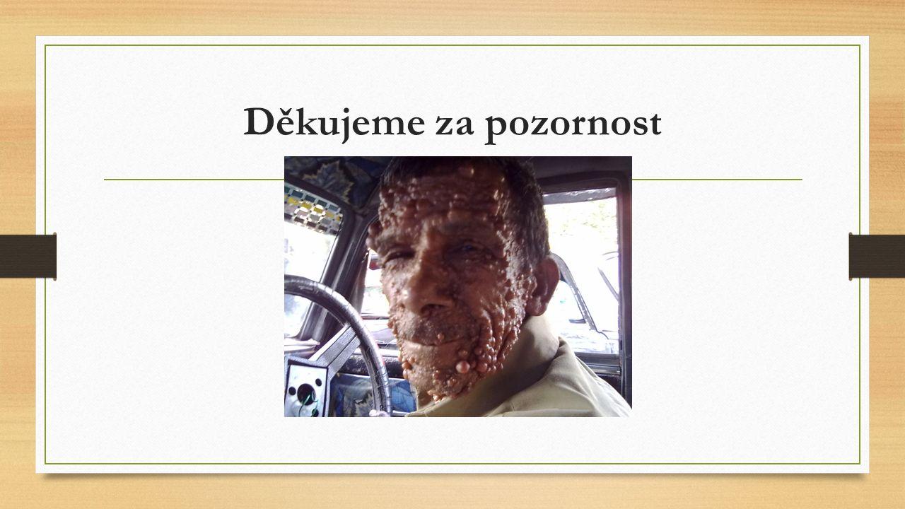 Zdroje: http://www.wikiskripta.eu/index.php/Neurofibromat%C3%B3za http://www.stefajir.cz/?q=neurofibromatoza http://www.priznaky-projevy.cz/geneticke-nemoci/recklinghausenova- choroba-neurofibromatoza-priznaky-projevy-symptomy-obrazek-fotografie http://www.priznaky-projevy.cz/geneticke-nemoci/recklinghausenova- choroba-neurofibromatoza-priznaky-projevy-symptomy-obrazek-fotografie http://www.molekulara.cz/co-vysetrujeme/neurofibromatoza-typu-1/ http://www.slideserve.com/jennifer-rodriquez/neurofibromat-za-typu-1-nf1 http://www.cba.muni.cz/cytogenlab/index.php?pg=metody--mlpa