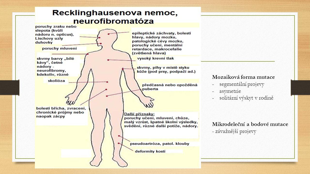 Lischovy uzlíky (hamartomy duhovky) Časné známky neurofibromatózy typu I: drobné neurofibromy a skvrny barvy bílé kávy (café-au-lait) Četné neurofibromy Faciální dysmorfie