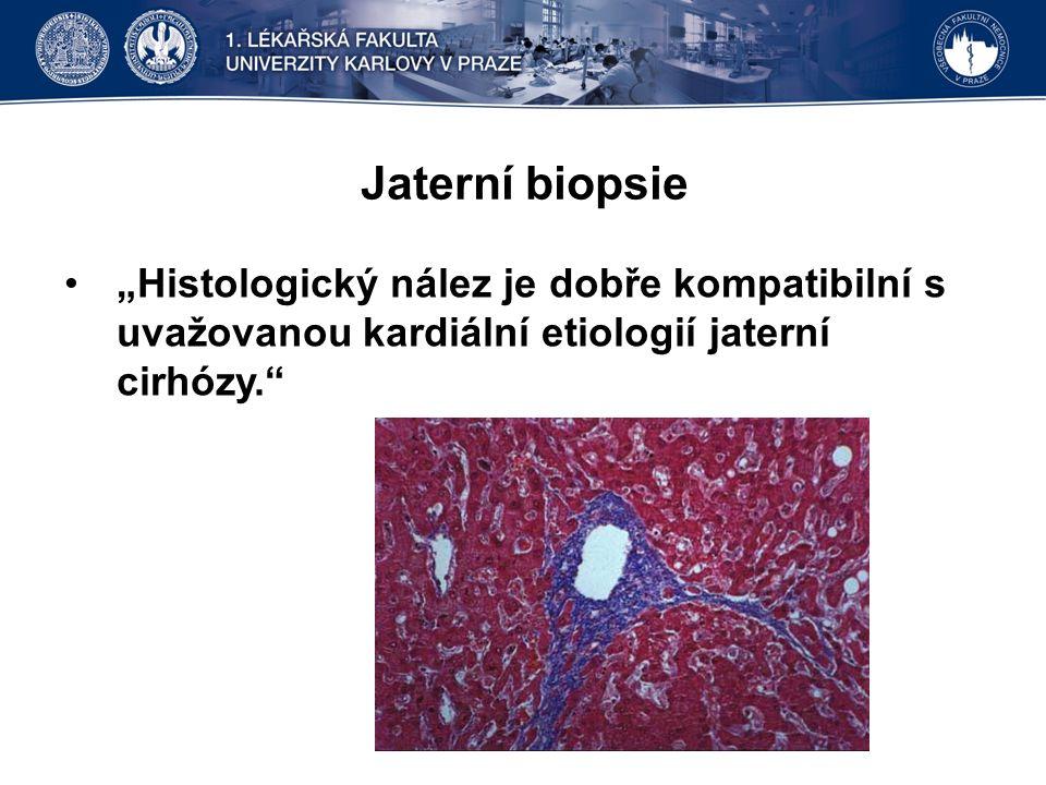 """Jaterní biopsie """"Histologický nález je dobře kompatibilní s uvažovanou kardiální etiologií jaterní cirhózy."""