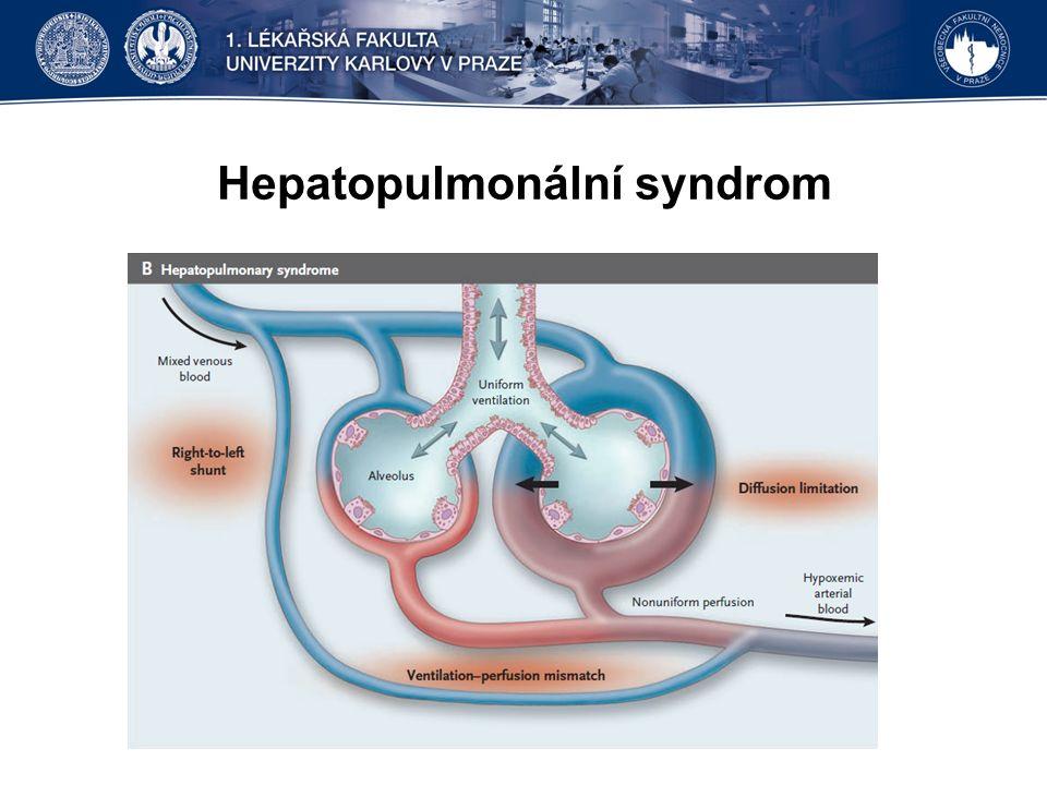 Hepatopulmonální syndrom