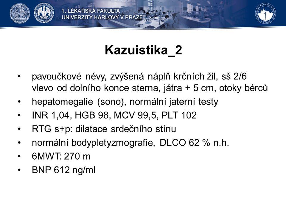 Kazuistika_2 pavoučkové névy, zvýšená náplň krčních žil, sš 2/6 vlevo od dolního konce sterna, játra + 5 cm, otoky bérců hepatomegalie (sono), normální jaterní testy INR 1,04, HGB 98, MCV 99,5, PLT 102 RTG s+p: dilatace srdečního stínu normální bodypletyzmografie, DLCO 62 % n.h.
