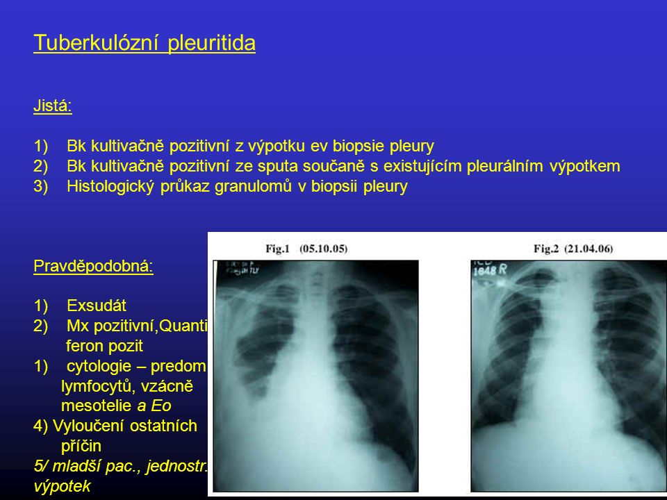Tuberkulózní pleuritida Jistá: 1)Bk kultivačně pozitivní z výpotku ev biopsie pleury 2)Bk kultivačně pozitivní ze sputa součaně s existujícím pleuráln