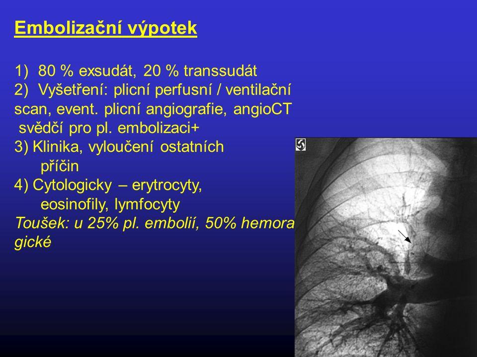 Embolizační výpotek 1)80 % exsudát, 20 % transsudát 2)Vyšetření: plicní perfusní / ventilační scan, event. plicní angiografie, angioCT svědčí pro pl.