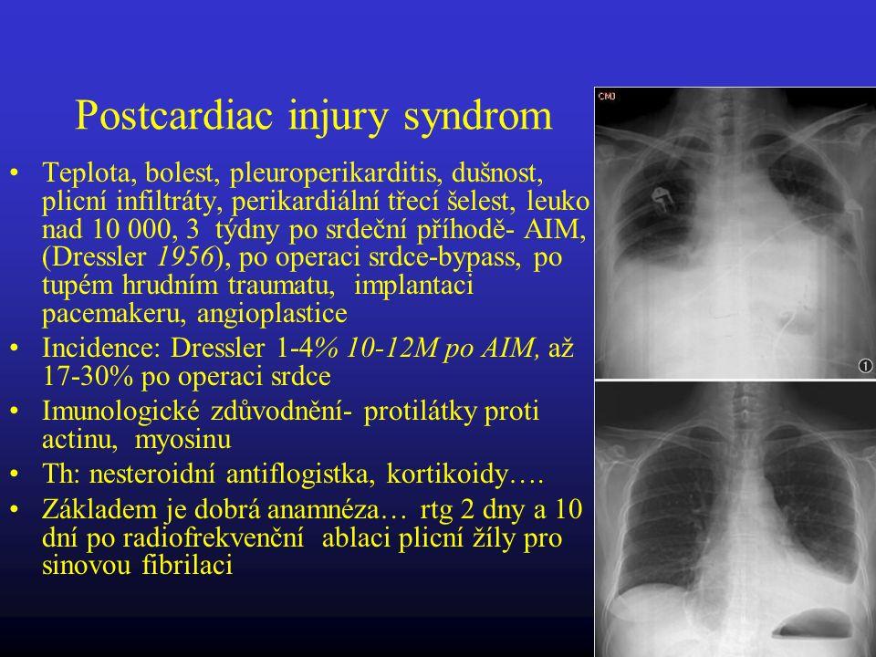 Postcardiac injury syndrom Teplota, bolest, pleuroperikarditis, dušnost, plicní infiltráty, perikardiální třecí šelest, leuko nad 10 000, 3 týdny po s