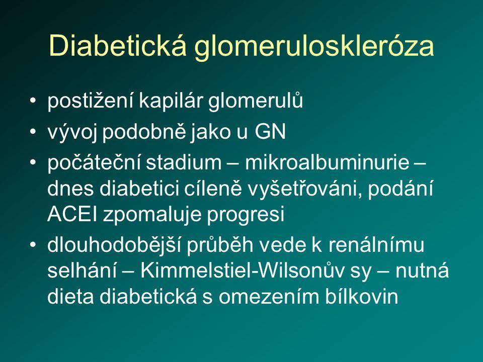 Diabetická glomeruloskleróza postižení kapilár glomerulů vývoj podobně jako u GN počáteční stadium – mikroalbuminurie – dnes diabetici cíleně vyšetřov