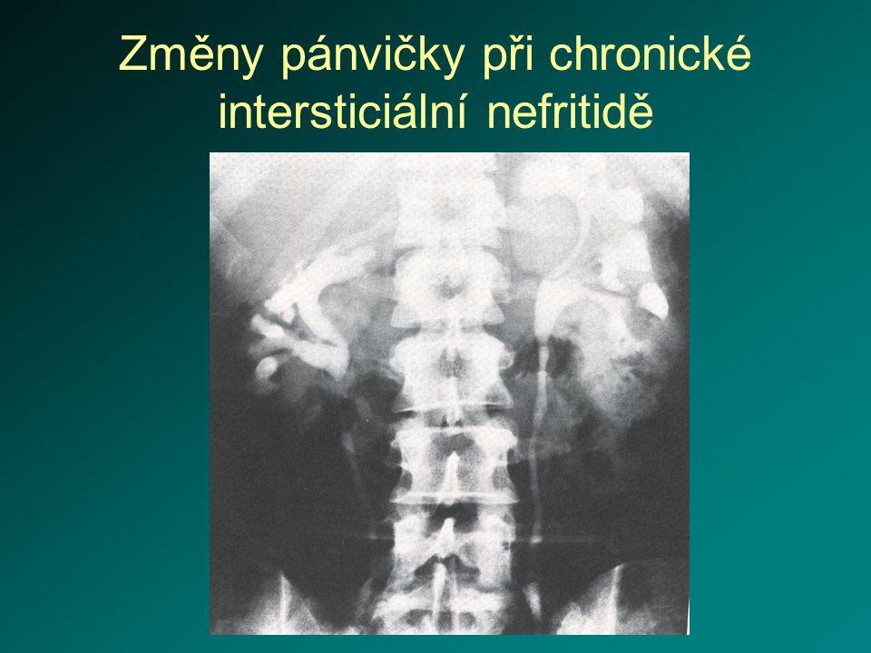 Změny pánvičky při chronické intersticiální nefritidě