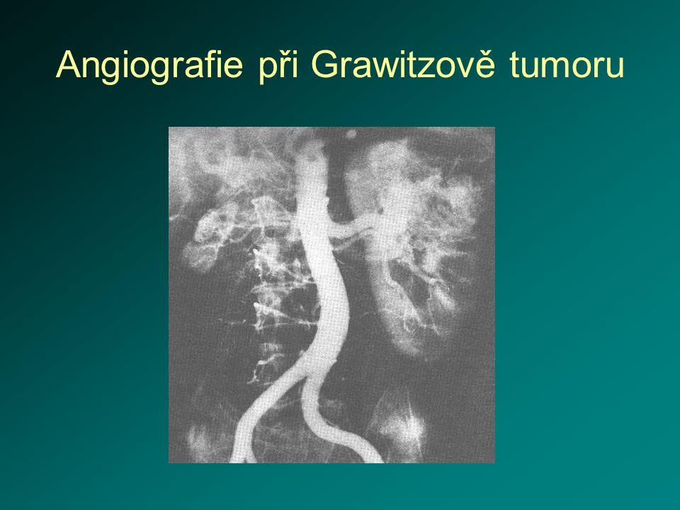 Angiografie při Grawitzově tumoru