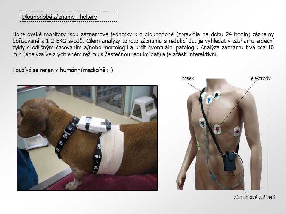 Dlouhodobé záznamy - holtery Holterovské monitory jsou záznamové jednotky pro dlouhodobé (zpravidla na dobu 24 hodin) záznamy pořizované z 1-2 EKG svo