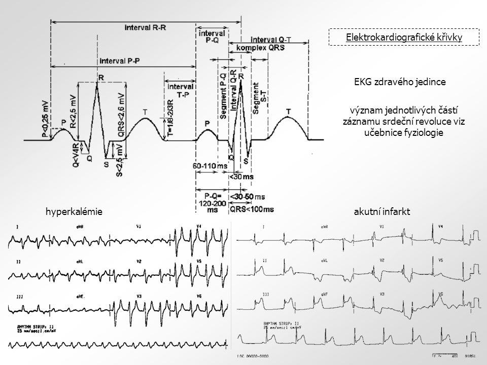 Elektrokardiografické křivky EKG zdravého jedince hyperkalémieakutní infarkt význam jednotlivých částí záznamu srdeční revoluce viz učebnice fyziologie
