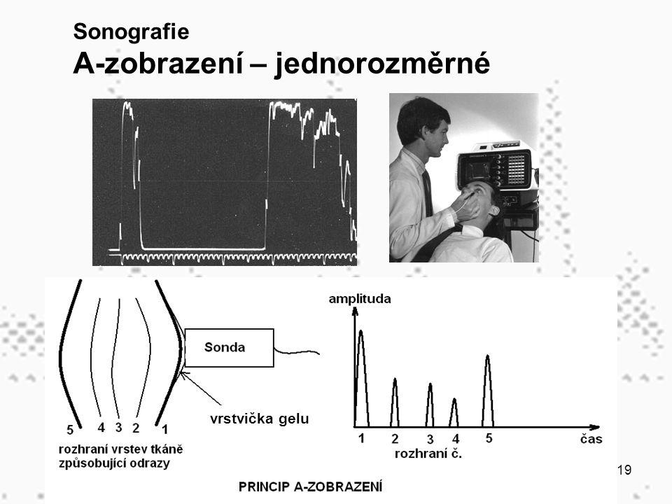 19 Sonografie A-zobrazení – jednorozměrné vrstvička gelu