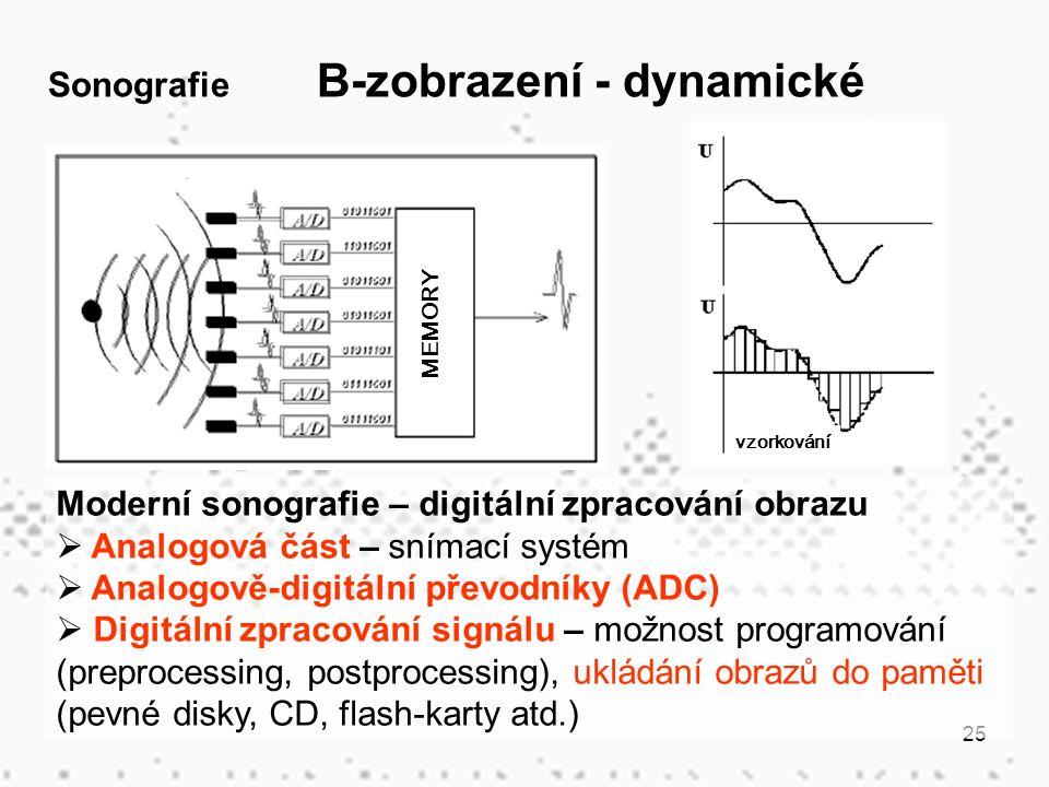 25 Moderní sonografie – digitální zpracování obrazu  Analogová část – snímací systém  Analogově-digitální převodníky (ADC)  Digitální zpracování signálu – možnost programování (preprocessing, postprocessing), ukládání obrazů do paměti (pevné disky, CD, flash-karty atd.) Sonografie B-zobrazení - dynamické MEMORY vzorkování