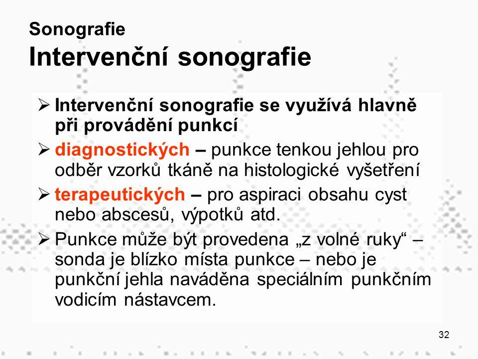 32 Sonografie Intervenční sonografie  Intervenční sonografie se využívá hlavně při provádění punkcí  diagnostických – punkce tenkou jehlou pro odběr