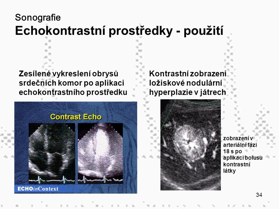 34 Sonografie Echokontrastní prostředky - použití Zesílené vykreslení obrysů srdečních komor po aplikaci echokontrastního prostředku Kontrastní zobrazeni ložiskové nodulární hyperplazie v játrech zobrazení v arteriální fázi 18 s po aplikaci bolusu kontrastní látky