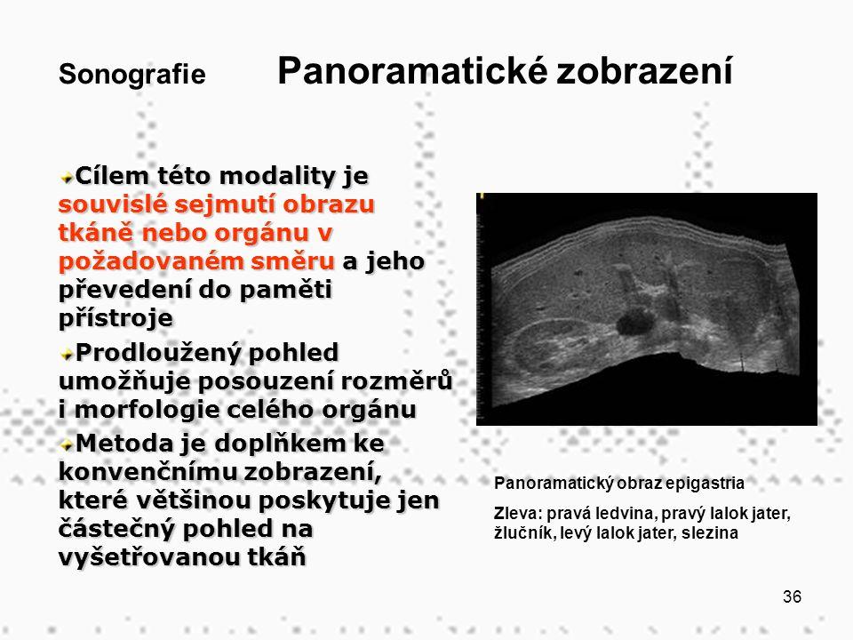 36 Sonografie Panoramatické zobrazení Cílem této modality je souvislé sejmutí obrazu tkáně nebo orgánu v požadovaném směru a jeho převedení do paměti přístroje Prodloužený pohled umožňuje posouzení rozměrů i morfologie celého orgánu Metoda je doplňkem ke konvenčnímu zobrazení, které většinou poskytuje jen částečný pohled na vyšetřovanou tkáň Panoramatický obraz epigastria Zleva: pravá ledvina, pravý lalok jater, žlučník, levý lalok jater, slezina