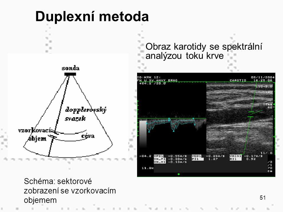 51 Obraz karotidy se spektrální analýzou toku krve Schéma: sektorové zobrazení se vzorkovacím objemem Duplexní metoda