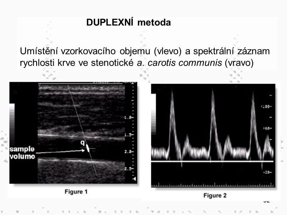 52 DUPLEXNÍ metoda Umístění vzorkovacího objemu (vlevo) a spektrální záznam rychlosti krve ve stenotické a. carotis communis (vravo)