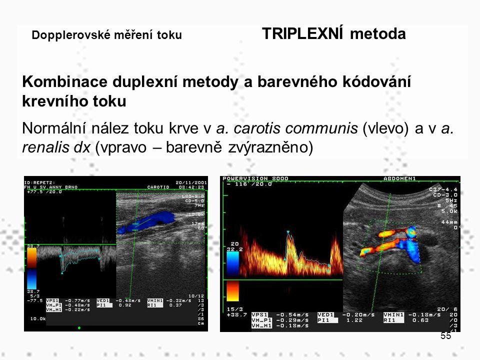 55 Dopplerovské měření toku TRIPLEXNÍ metoda Kombinace duplexní metody a barevného kódování krevního toku Normální nález toku krve v a.