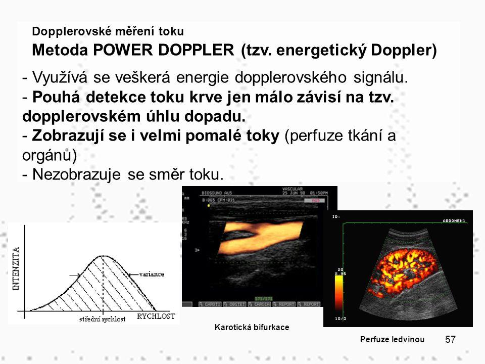57 Dopplerovské měření toku Metoda POWER DOPPLER (tzv. energetický Doppler) - Využívá se veškerá energie dopplerovského signálu. - Pouhá detekce toku