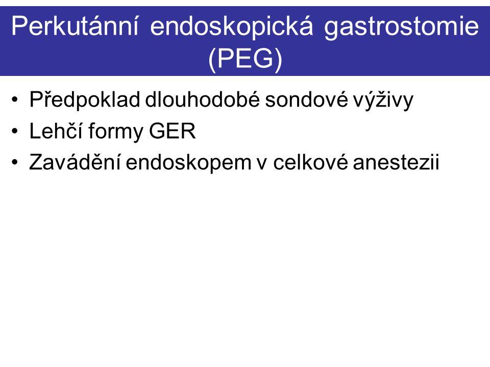 Perkutánní endoskopická gastrostomie (PEG) Předpoklad dlouhodobé sondové výživy Lehčí formy GER Zavádění endoskopem v celkové anestezii