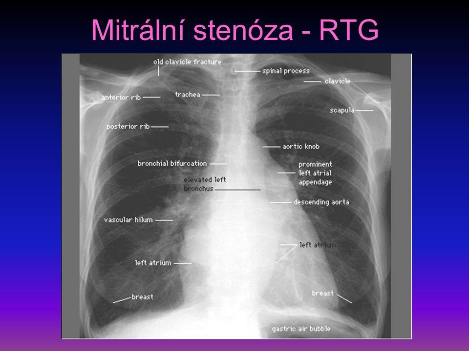 Získané srdeční vady II mitrální insuficience – nejčastěji je příčinou dilatace srdce, prolaps mitrální chlopně, ruptura šlašinek při IM, perforace chlopně při endokarditidě diagnostika – RTG zvětšení LS i LK, echokardiograficky také prolaps mitrální chlopně – u astenických osob, neohrožuje, doprovázen ES, lidé vnímají citlivě