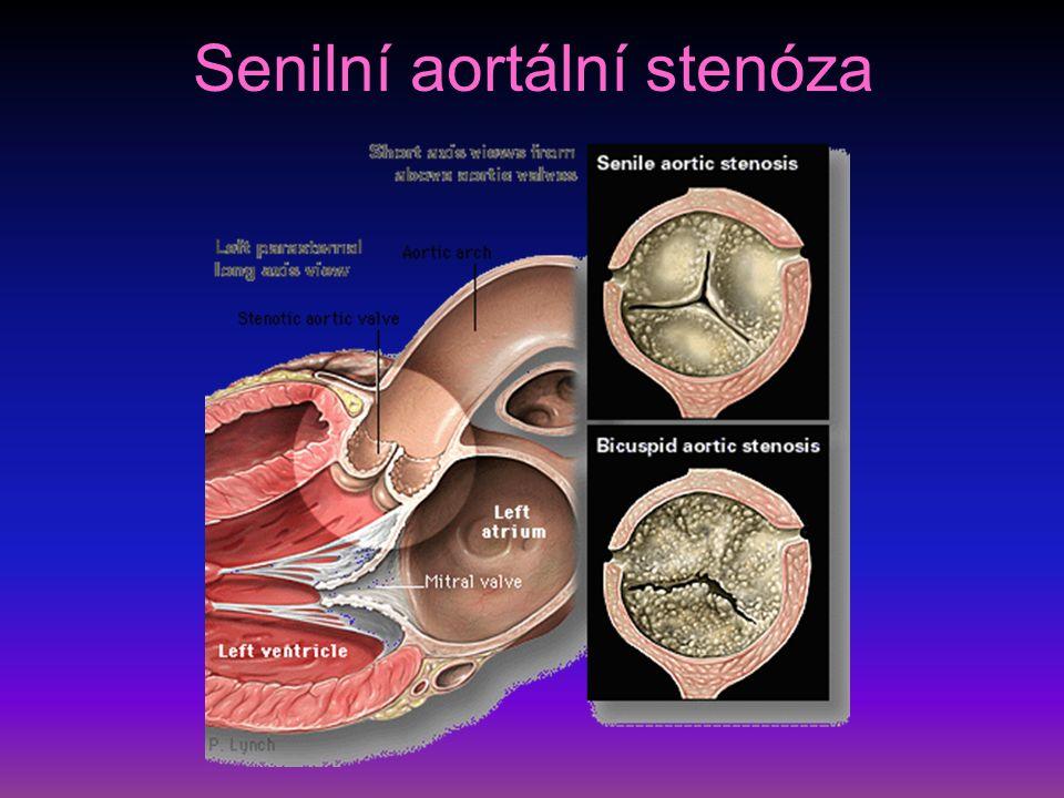 EKG při aortální stenóze