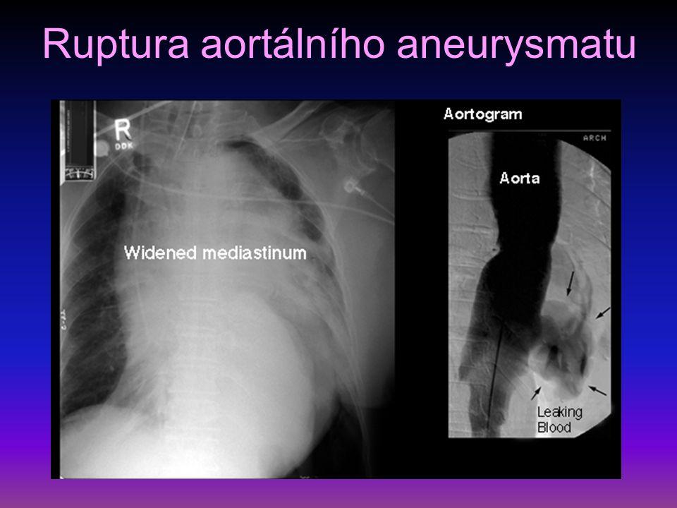 Dissekující aneuryzma aorty porušení intimy, průnik krve do stěny, smáčivá plocha, DIC bolesti až IM charakteru, ale EKG normální příznaky dle umístění – synkopa, renální selhání řešení – chirurgické dle naléhavosti