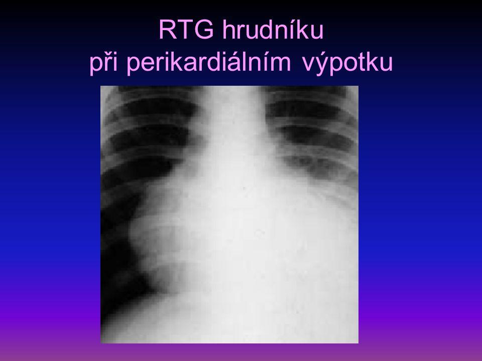 RTG hrudníku při perikardiálním výpotku