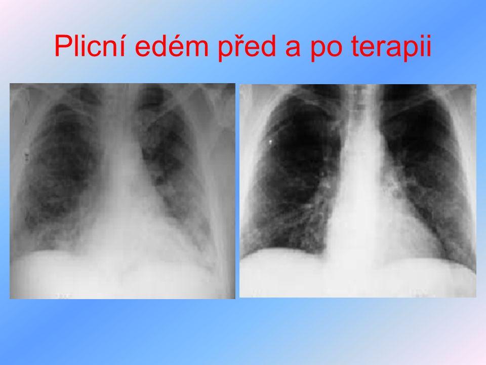 Plicní edém před a po terapii