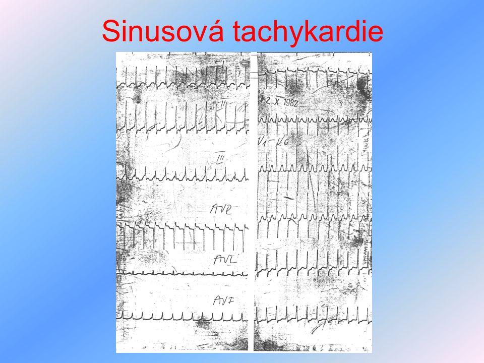 Sinusová tachykardie