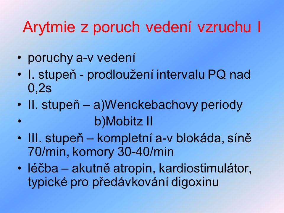 Arytmie z poruch vedení vzruchu I poruchy a-v vedení I. stupeň - prodloužení intervalu PQ nad 0,2s II. stupeň – a)Wenckebachovy periody b)Mobitz II II