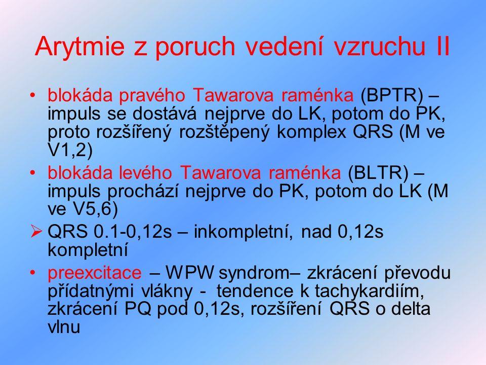 Arytmie z poruch vedení vzruchu II blokáda pravého Tawarova raménka (BPTR) – impuls se dostává nejprve do LK, potom do PK, proto rozšířený rozštěpený