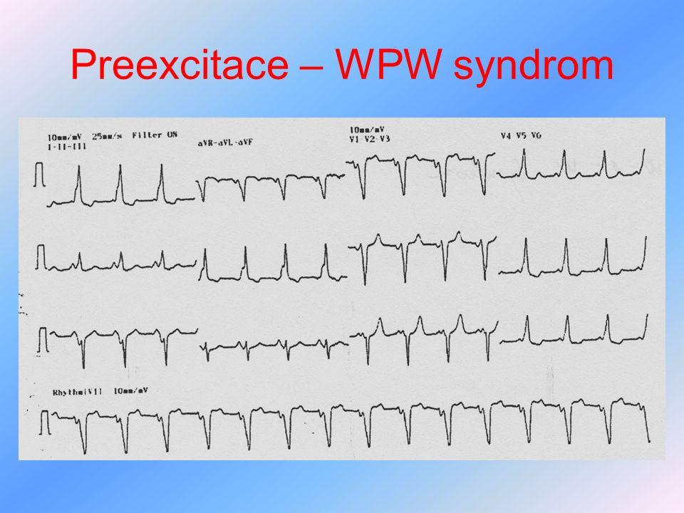 Preexcitace – WPW syndrom