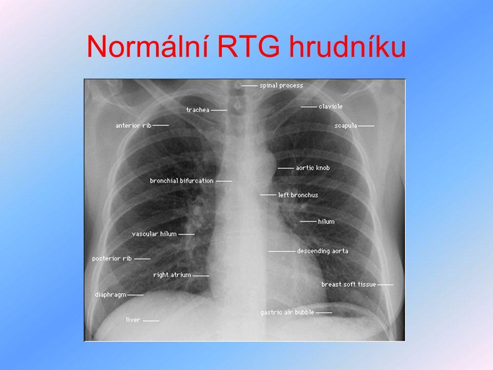 Normální RTG hrudníku