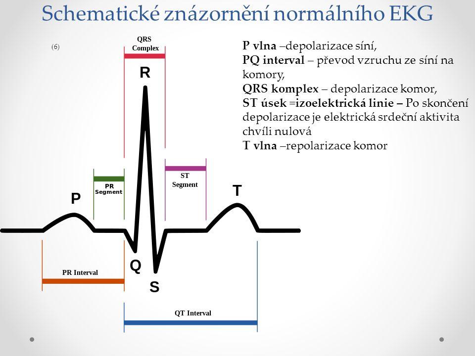 Vlna U nemusí být na EKG – křivce, jedná se o repolarizaci papilárních svalů (7)