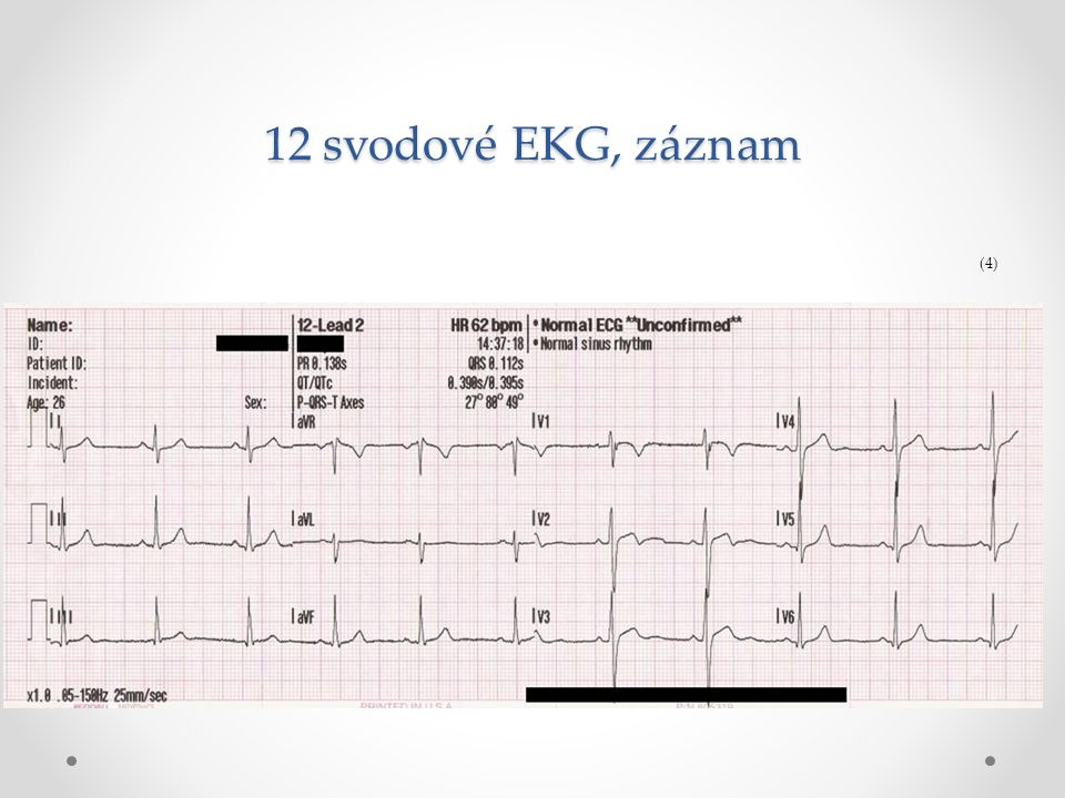 12 svodové EKG, záznam (4)