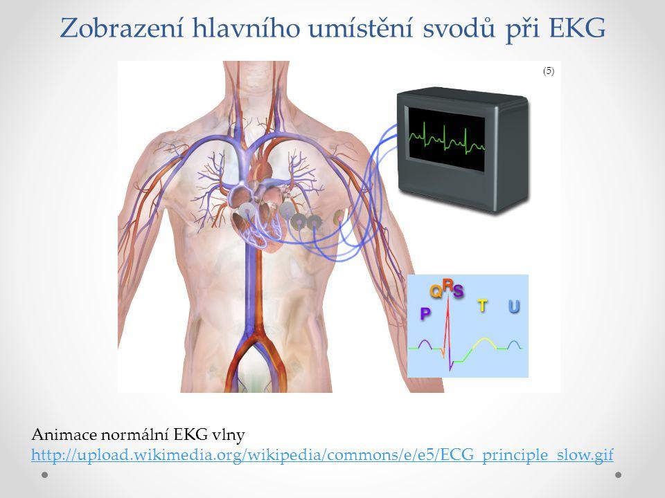 Schematické znázornění normálního EKG P vlna –depolarizace síní, PQ interval – převod vzruchu ze síní na komory, QRS komplex – depolarizace komor, ST úsek =izoelektrická linie – Po skončení depolarizace je elektrická srdeční aktivita chvíli nulová T vlna –repolarizace komor (6)