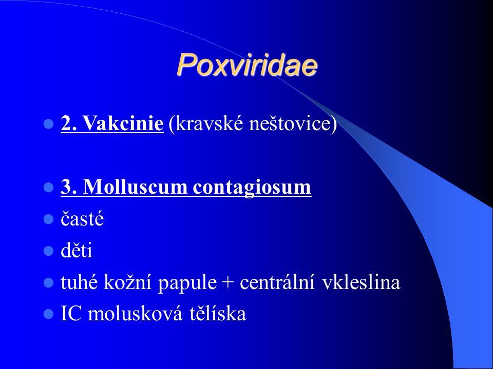 Poxviridae 2. Vakcinie (kravské neštovice) 3.