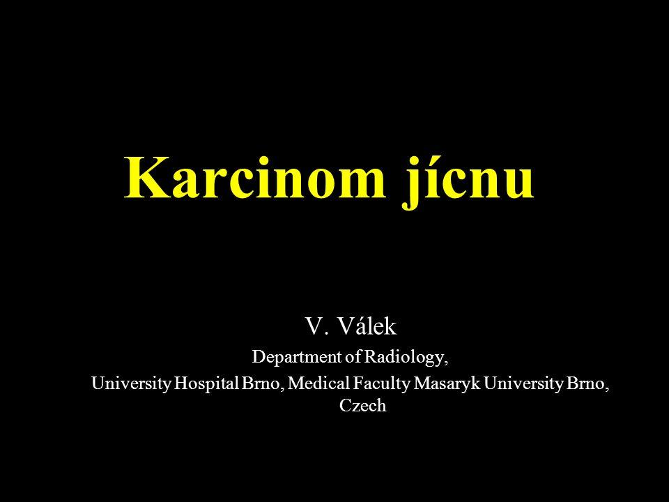 Karcinom jícnu V.
