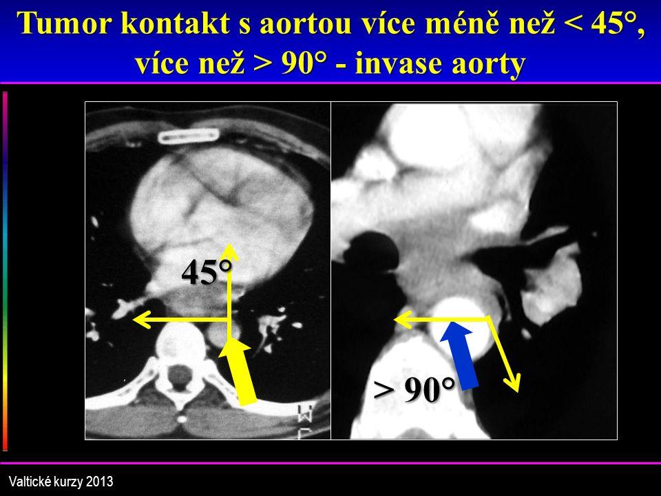 Tumor kontakt s aortou více méně než 90° - invase aorty 45° > 90° Valtické kurzy 2013