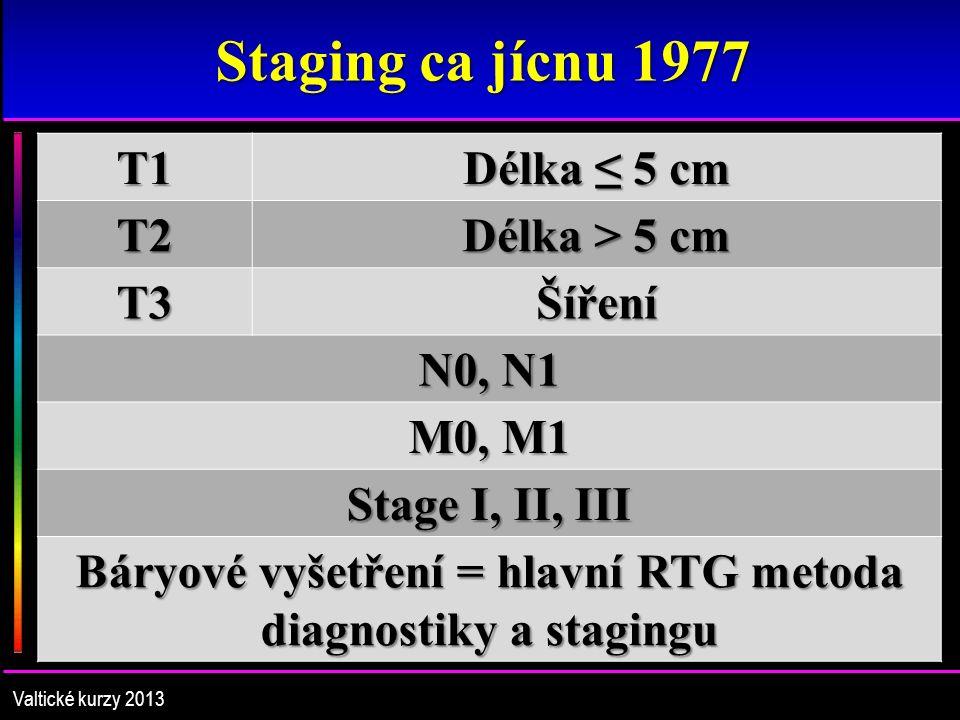 Staging ca jícnu 1977 T1 Délka ≤ 5 cm T2 Délka > 5 cm T3Šíření N0, N1 M0, M1 Stage I, II, III Báryové vyšetření = hlavní RTG metoda diagnostiky a stagingu Valtické kurzy 2013