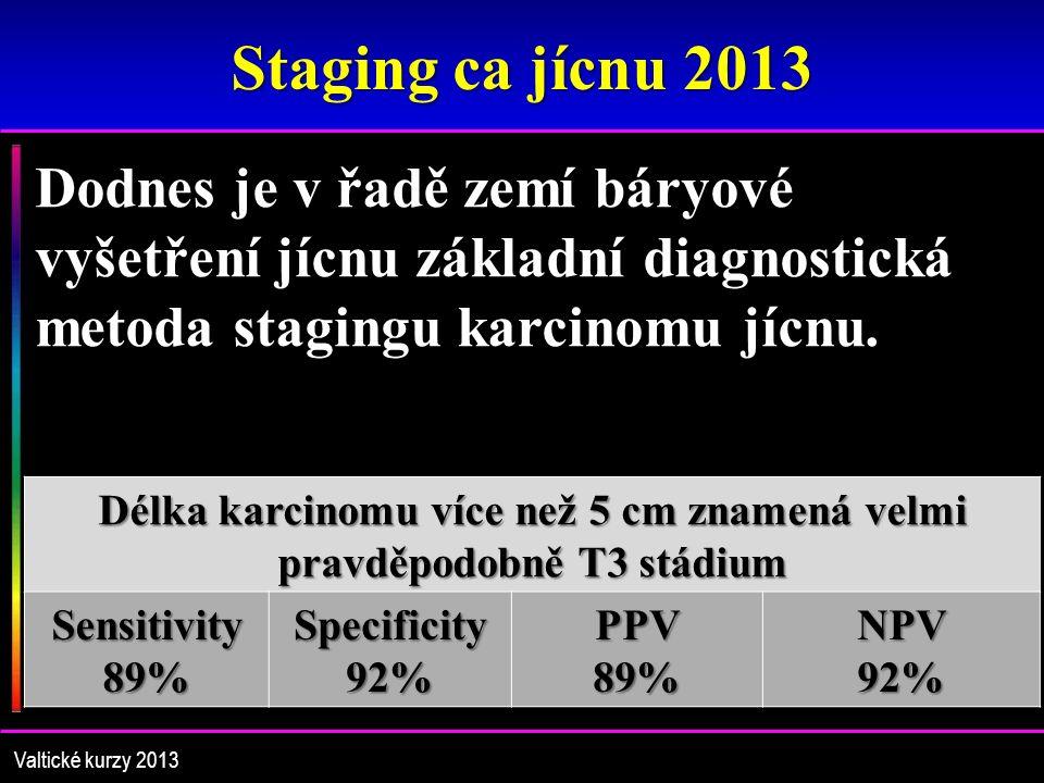 Staging ca jícnu 2013 Dodnes je v řadě zemí báryové vyšetření jícnu základní diagnostická metoda stagingu karcinomu jícnu.