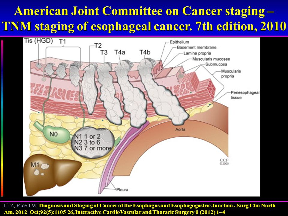 American Joint Committee on Cancer staging – TNM staging of esophageal cancer. 7th edition, 2010 Diagnosis and Staging of Cancer of the Esophagus and