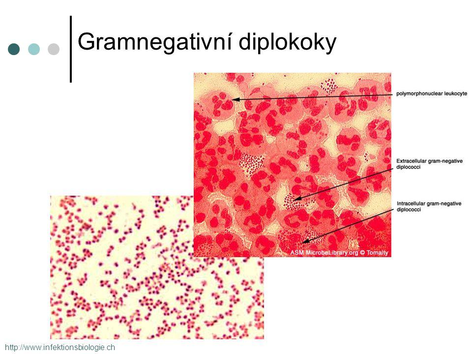 Gramnegativní diplokoky http://www.infektionsbiologie.ch