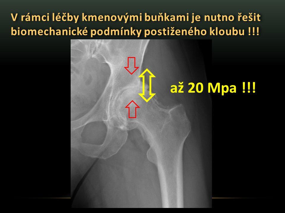 V rámci léčby kmenovými buňkami je nutno řešit biomechanické podmínky postiženého kloubu !!! až 20 Mpa !!!