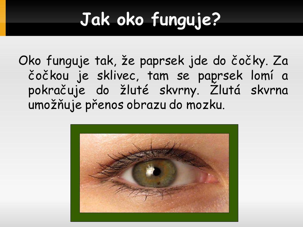 5 smyslů Zrak je jeden z 5-ti smyslů, je to nejdůležitější smysl Poruchy zraku Poruchy zraku,můžou nastat tím že dlouho koukáme na televizi nebo do počítače.