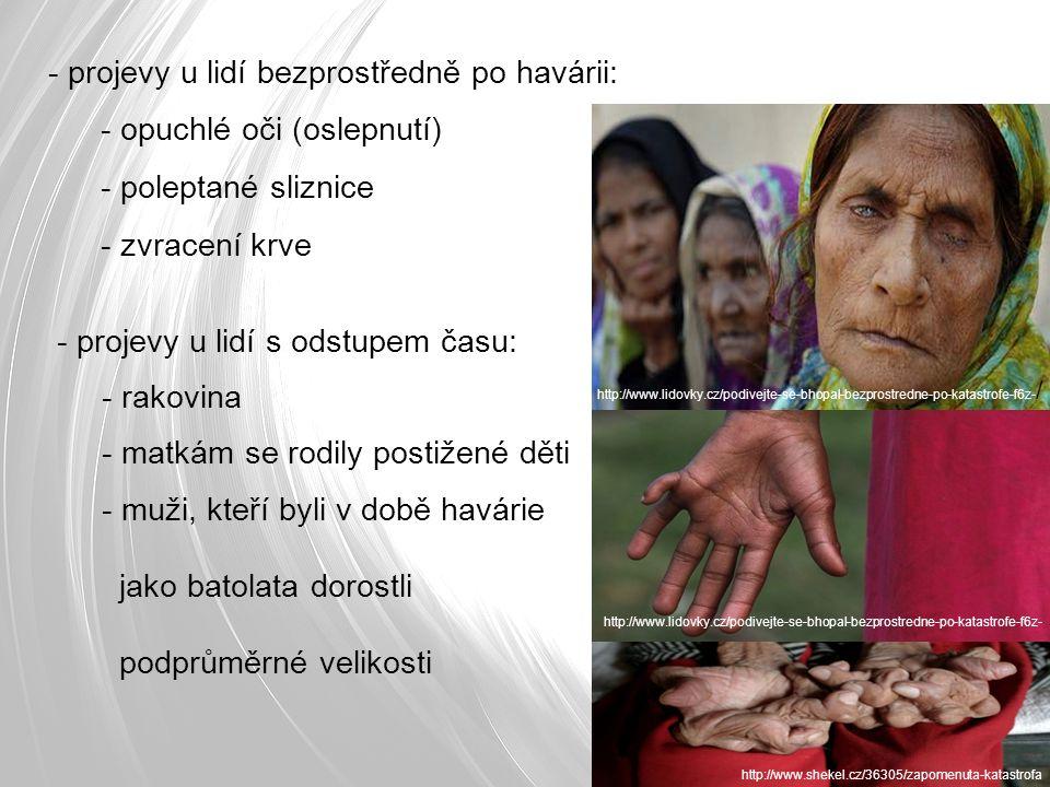 - projevy u lidí bezprostředně po havárii: - opuchlé oči (oslepnutí) - poleptané sliznice - zvracení krve - projevy u lidí s odstupem času: - rakovina - matkám se rodily postižené děti - muži, kteří byli v době havárie jako batolata dorostli podprůměrné velikosti http://www.lidovky.cz/podivejte-se-bhopal-bezprostredne-po-katastrofe-f6z- / http://www.shekel.cz/36305/zapomenuta-katastrofa http://www.lidovky.cz/podivejte-se-bhopal-bezprostredne-po-katastrofe-f6z-