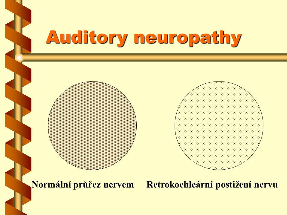 Nestandardní porucha rozumění řeči Prahový tónový audio - jakýkoliv Hrubě patologická BERA Zcela normální OAE Vylučují se ty stavy, kde je známý problém ve sluchovém nervu – neurinom, traumata apod.